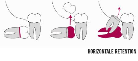 Osteotomie bei Weisheitszähnen Horizontal