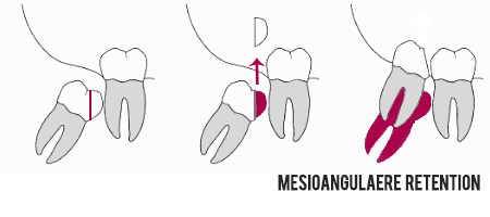Osteotomie bei Weisheitszähnen Mesioangulär