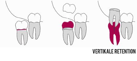 Osteotomie bei Weisheitszähnen Vertikal