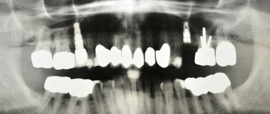 Implantate Röntgenaufnahme