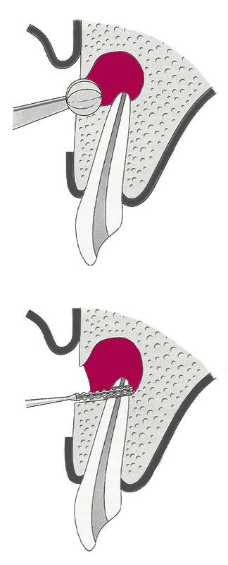 Wurzelspitzenresektion als chirurgische Zahnerhaltung